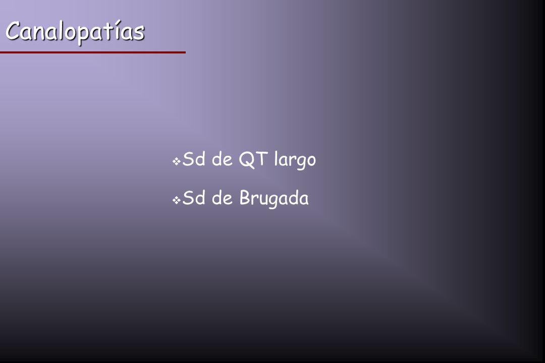 Canalopatías Sd de QT largo Sd de Brugada