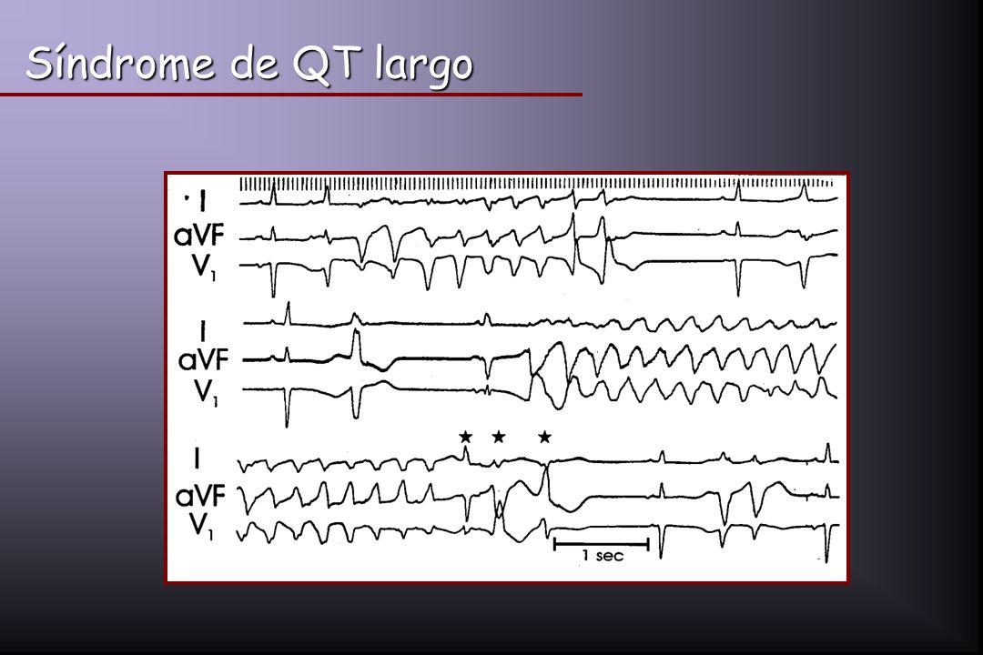 Síndrome de QT largo