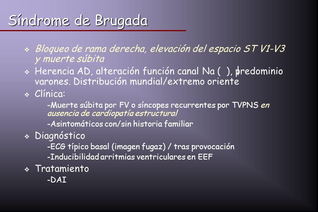 Síndrome de Brugada Bloqueo de rama derecha, elevación del espacio ST V1-V3 y muerte súbita Herencia AD, alteración función canal Na ( ), predominio v