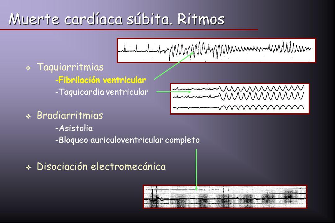 Muerte cardíaca súbita. Ritmos Taquiarritmias -Fibrilación ventricular -Taquicardia ventricular Bradiarritmias -Asistolia -Bloqueo auriculoventricular