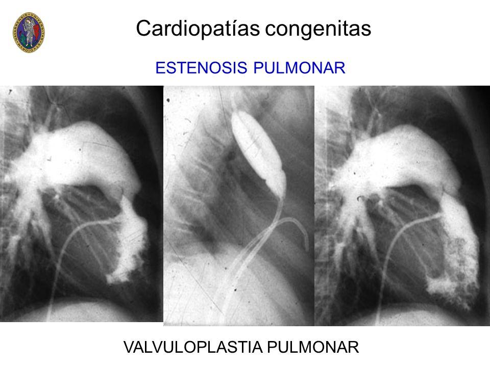 Cardiopatías congenitas ESTENOSIS PULMONAR VALVULOPLASTIA PULMONAR