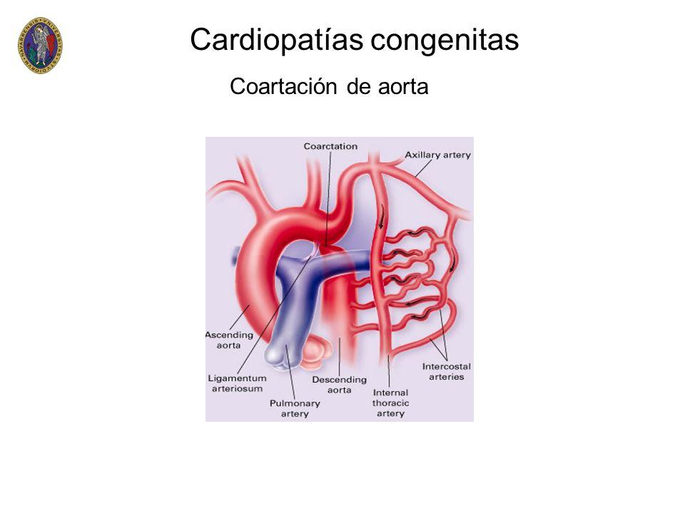 Cardiopatías congenitas Coartación de aorta