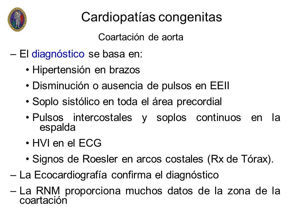 Cardiopatías congenitas Coartación de aorta –El diagnóstico se basa en: Hipertensión en brazos Disminución o ausencia de pulsos en EEII Soplo sistólic