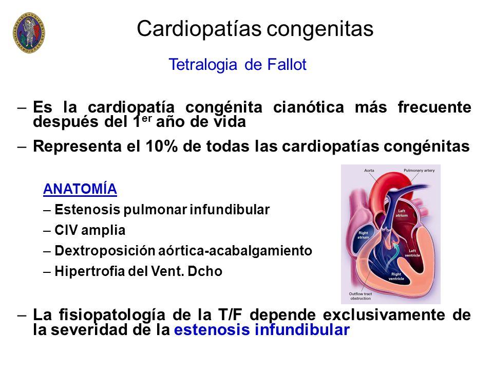 –Es la cardiopatía congénita cianótica más frecuente después del 1 er año de vida –Representa el 10% de todas las cardiopatías congénitas ANATOMÍA – E