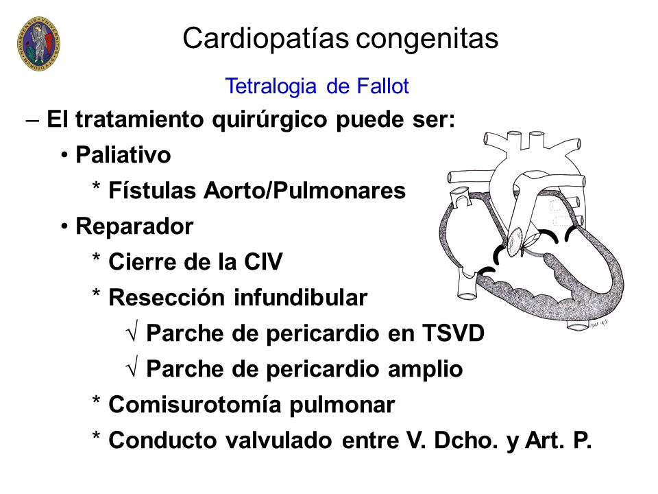 –El tratamiento quirúrgico puede ser: Paliativo * Fístulas Aorto/Pulmonares Reparador * Cierre de la CIV * Resección infundibular Parche de pericardio