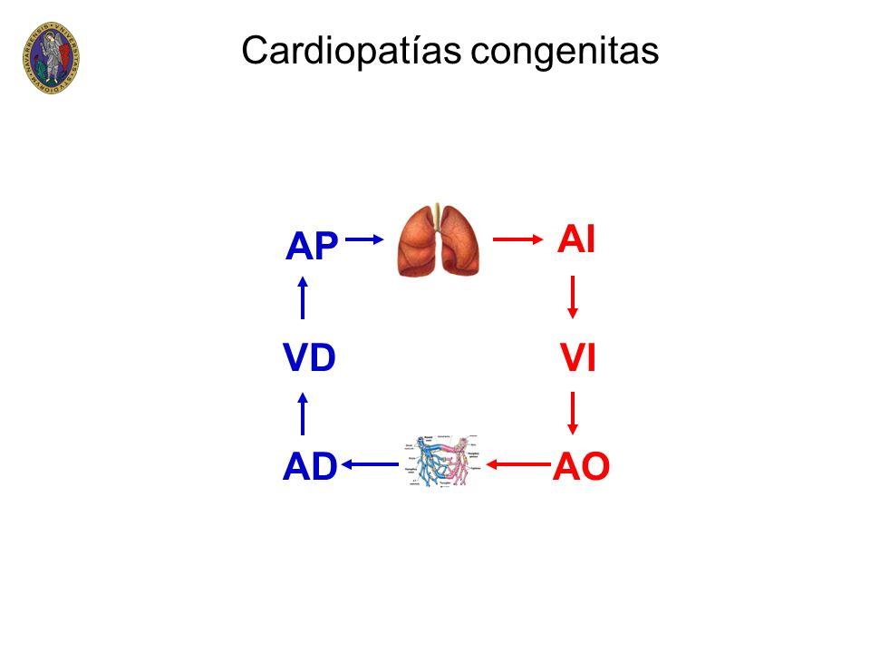 Cardiopatías congenitas VD AP AD VI AI AO