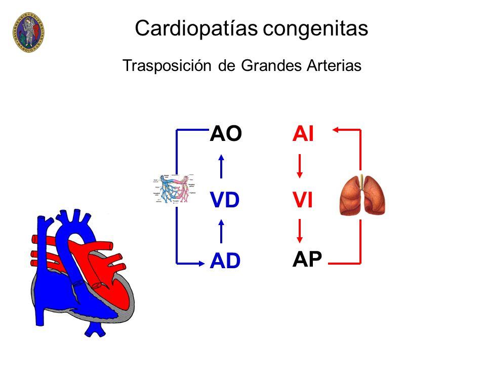 Cardiopatías congenitas VD AP AD VI AIAO Trasposición de Grandes Arterias