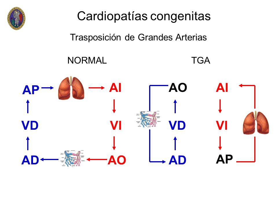 Cardiopatías congenitas Trasposición de Grandes Arterias VD AP AD VI AIAO VD AP AD VI AI AO NORMAL TGA