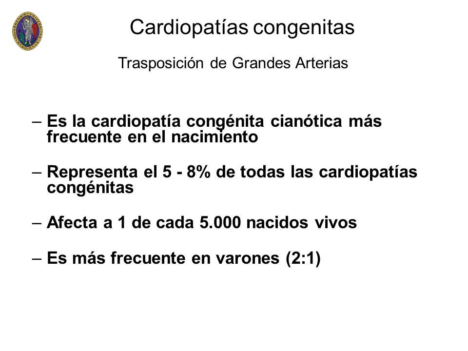–Es la cardiopatía congénita cianótica más frecuente en el nacimiento –Representa el 5 - 8% de todas las cardiopatías congénitas –Afecta a 1 de cada 5