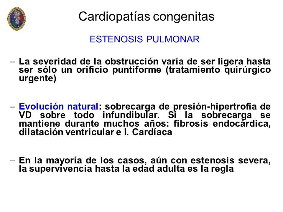 Cardiopatías congenitas Coartación de aorta –El diagnóstico se basa en: Hipertensión en brazos Disminución o ausencia de pulsos en EEII Soplo sistólico en toda el área precordial Pulsos intercostales y soplos continuos en la espalda HVI en el ECG Signos de Roesler en arcos costales (Rx de Tórax).