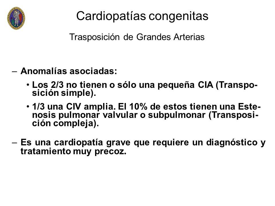 –Anomalías asociadas: Los 2/3 no tienen o sólo una pequeña CIA (Transpo- sición simple). 1/3 una CIV amplia. El 10% de estos tienen una Este- nosis pu