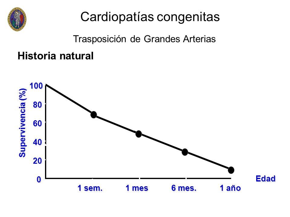 0 20 40 60 80 100 1 sem. 1 mes 6 mes. 1 año Edad Supervivencia (%) Historia natural Cardiopatías congenitas Trasposición de Grandes Arterias