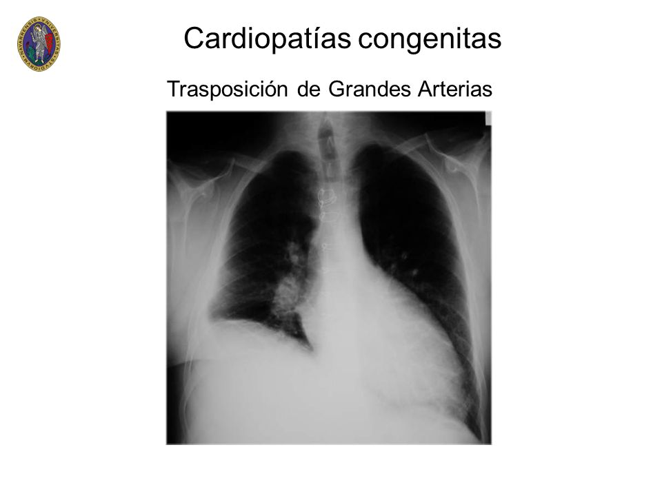 Cardiopatías congenitas Trasposición de Grandes Arterias