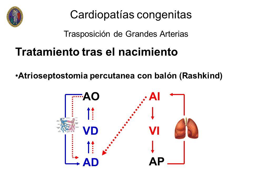 Tratamiento tras el nacimiento Atrioseptostomia percutanea con balón (Rashkind) Cardiopatías congenitas Trasposición de Grandes Arterias VD AP AD VI A