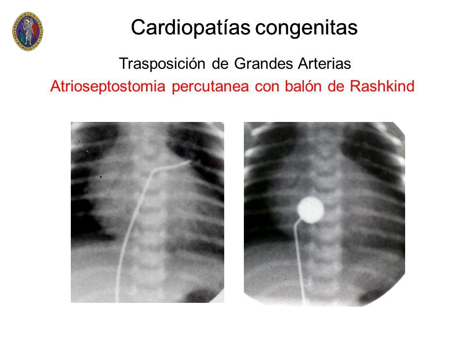 Cardiopatías congenitas Trasposición de Grandes Arterias Atrioseptostomia percutanea con balón de Rashkind