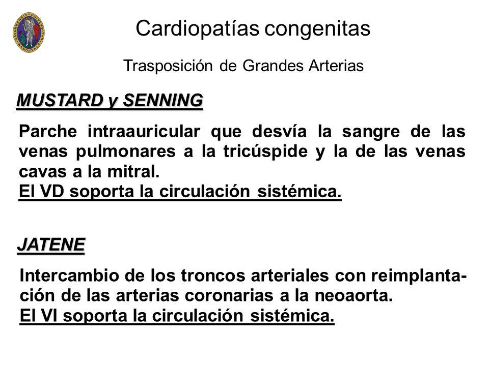 Parche intraauricular que desvía la sangre de las venas pulmonares a la tricúspide y la de las venas cavas a la mitral. El VD soporta la circulación s