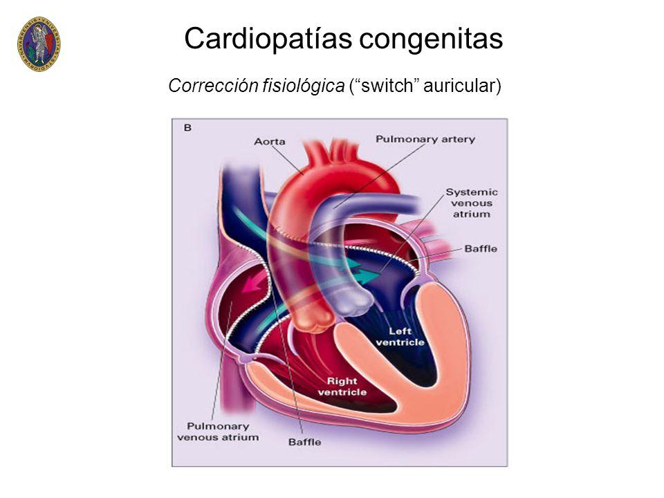 Cardiopatías congenitas Corrección fisiológica (switch auricular)