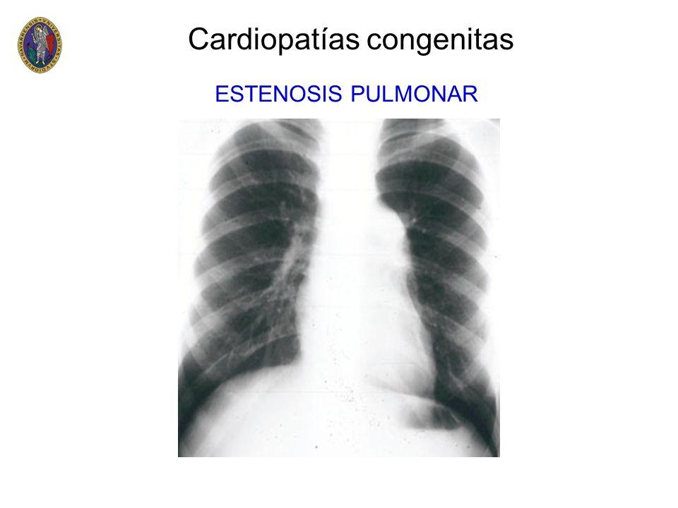 Cardiopatías congenitas VD AP AD VI AI AO Tetralogia de Fallot