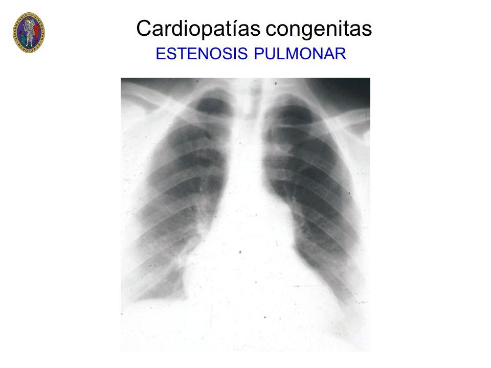 –Es la cardiopatía congénita cianótica más frecuente en el nacimiento –Representa el 5 - 8% de todas las cardiopatías congénitas –Afecta a 1 de cada 5.000 nacidos vivos –Es más frecuente en varones (2:1) Cardiopatías congenitas Trasposición de Grandes Arterias