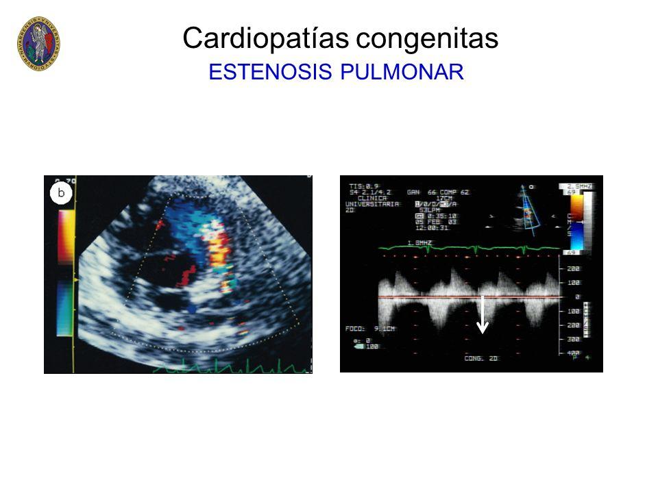 Cardiopatías congenitas Coartación de aorta –Intervención quirúrgica temprana –Un gradiente a nivel de la coartación mayor de 40 mmHg aconseja la intervención –También puede resolverse la coartación con dilatación de catéter-balón e implantación de un stent TRATAMIENTO