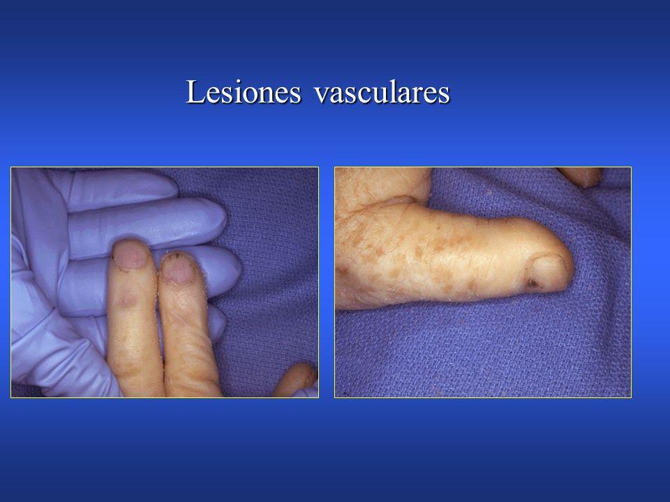 Endocarditis infecciosa Hemorragias en astillaHemorragias en astilla Nodulos de OslerNodulos de Osler Lesiones de JanewayLesiones de Janeway Petequias