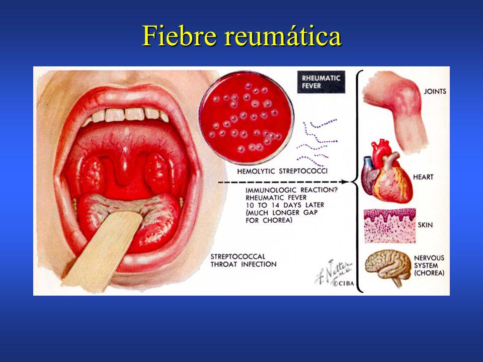 Fiebre reumática Enfermedad inflamatoria multisitemica por infección del estreptococo beta hemolítico del grupo AEnfermedad inflamatoria multisitemica