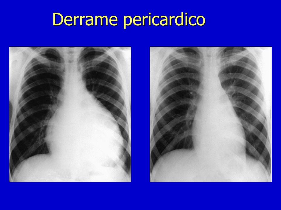 Derrame pericardico n Ecocardiograma n RxTorax(Cardiomegalia >200ml) n TAC/RNM n ECG. (QRS<15mV en I,II,III) n Etiológico(serologias) Diagnóstico