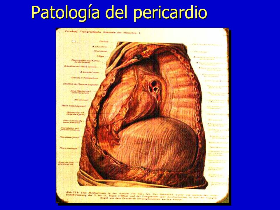 Pericarditis constrictiva n 50% diagnóstico patológico inespecífico n TBC n Neoplasia n Purulenta ETIOLOGIA Engrosamiento pericárdico:1-2 cm Grosor normal:1-2mm