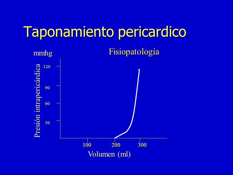 Taponamiento cardíaco n ICC n Pericarditis exudativo constrictiva n Pericarditis constrictiva aguda y subaguda n Constricción cardíaca transitoria n C