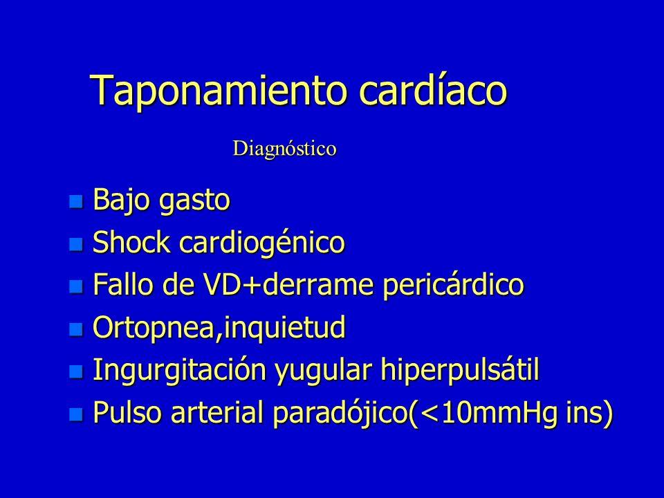 Taponamiento cardíaco n Velocidad de acumulación n Grado de distensibilidad del pericardio n Volemia Presión pericárdica crítica (determinantes) (dete