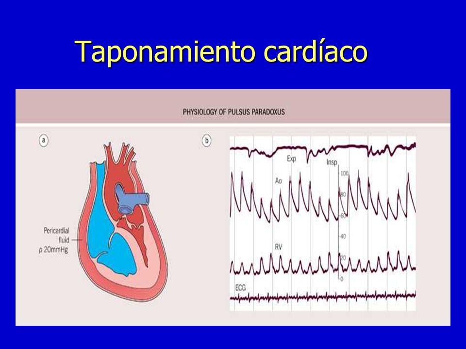Taponamiento cardíaco n Bajo gasto n Shock cardiogénico n Fallo de VD+derrame pericárdico n Ortopnea,inquietud n Ingurgitación yugular hiperpulsátil n