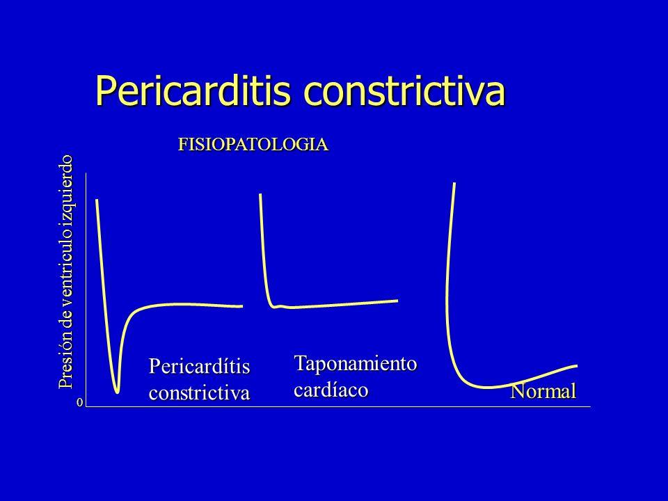 Presión de ventriculo izquierdo Pericardítisconstrictiva Taponamientocardíaco 0 FISIOPATOLOGIA