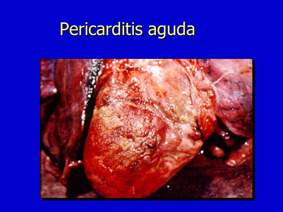 Pericarditis Aguda n Inflamación n Inflamación aguda que puede cursar con derrame pericárdico o sin él,y acompañarse o no de taponamiento cardíaco n I
