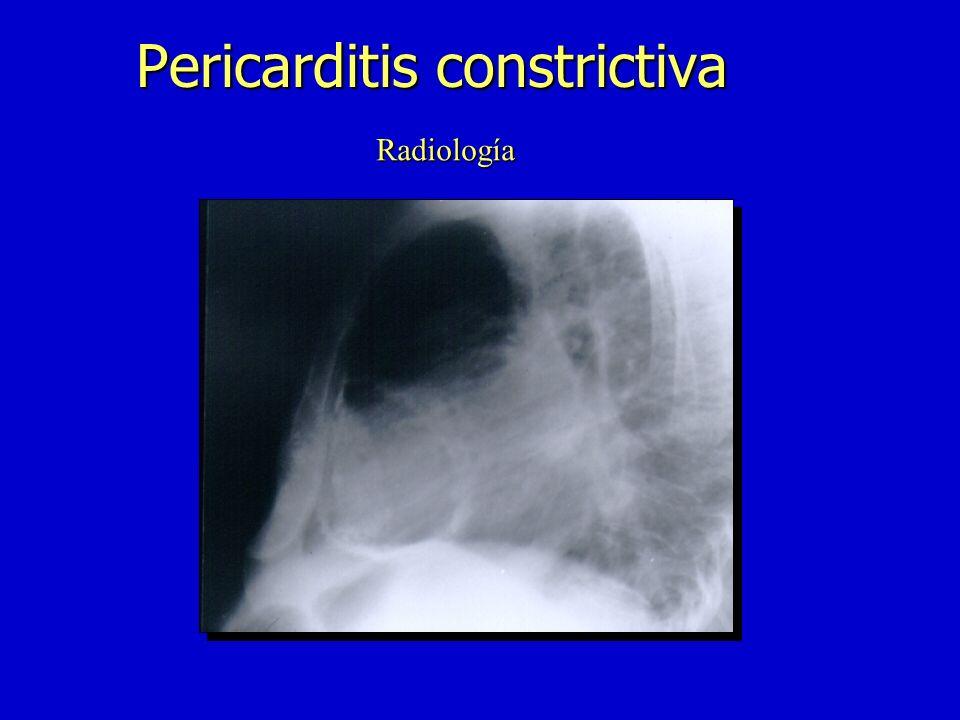 n Signo de Kussmaul n Pulso paradójico n Ruidos pericárdicos-tipo chasquido n ECG:T plana o (-), ACxFA n Rx:calcificación pericárdica –derrame pleural