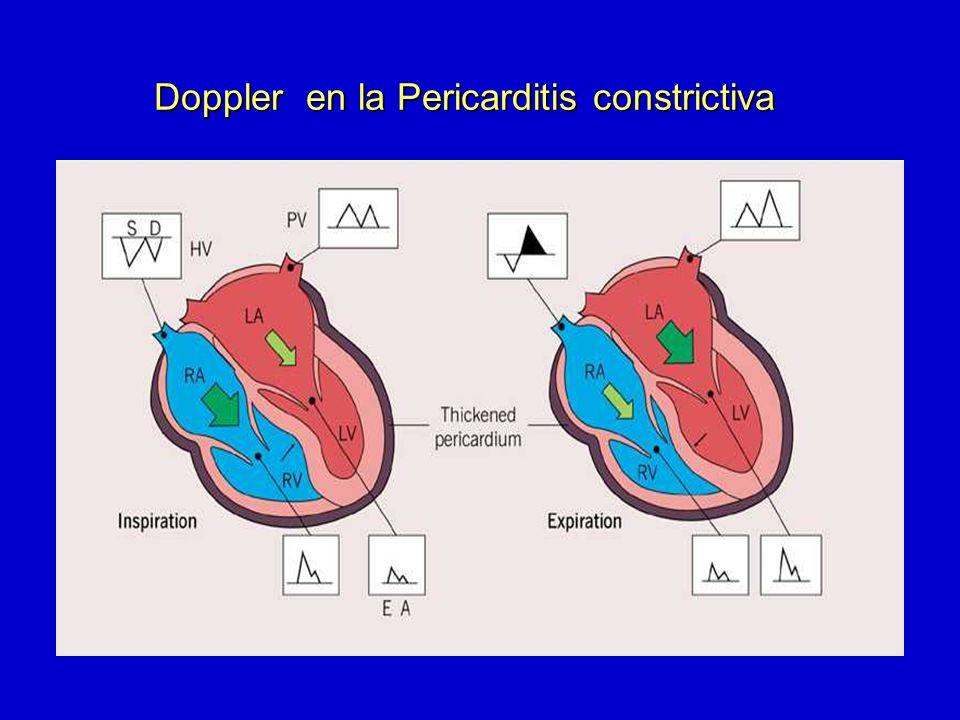 Normal Relajación anormal seudonormal restrictivo Llenado Doppleranillomitral Doppler en la Pericarditis constrictiva