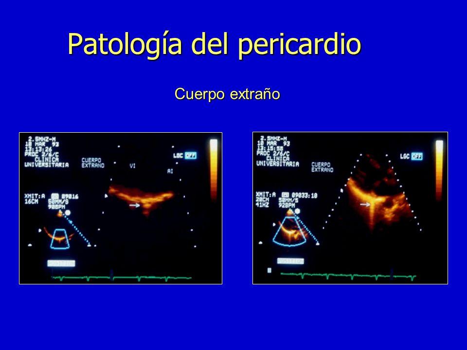 Pericardio: otras patologías n Sindrome de Dressler n Sindrome postpericardiotomia n Quiste pericardico simple n Neoplasias n Enfermedades sistémicas
