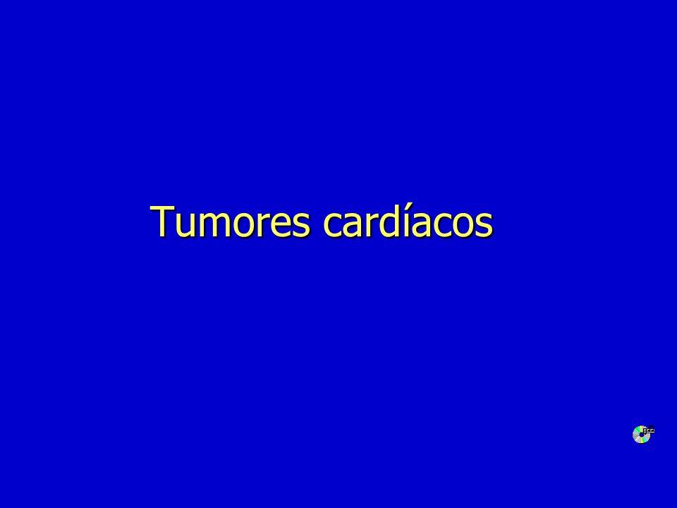 Enfermedades del pericardio n Pericarditis aguda n Derrame pericárdico n Taponamiento cardíaco n Pericarditis constrictiva