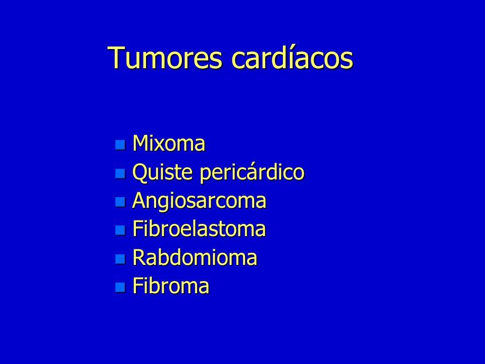 Tumores cardíacos