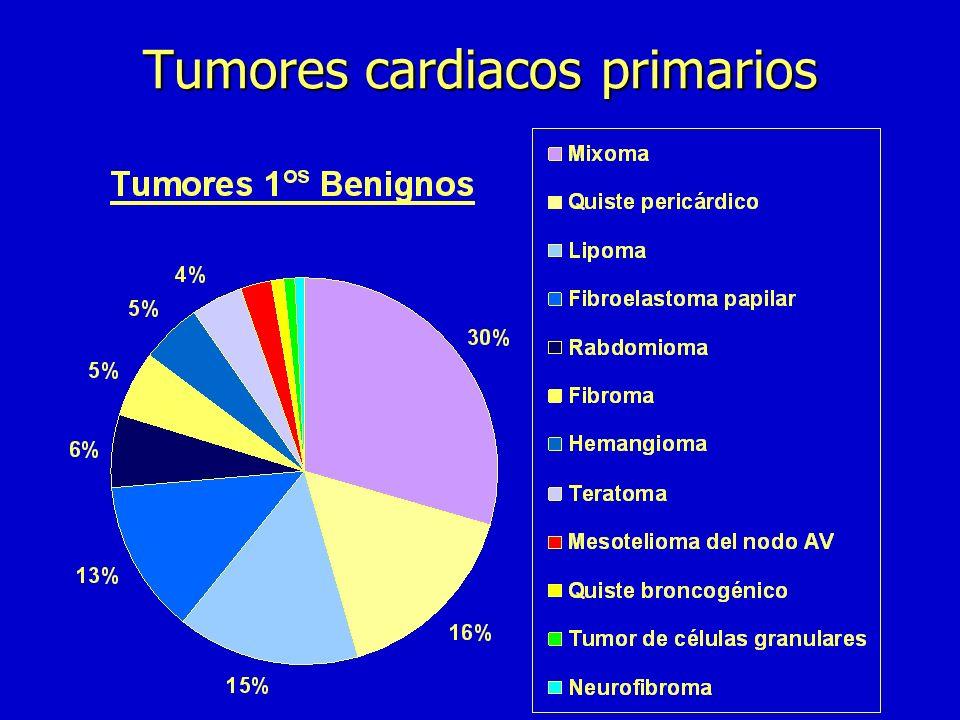 n Mixoma n Quiste pericárdico n Angiosarcoma n Fibroelastoma n Rabdomioma n Fibroma