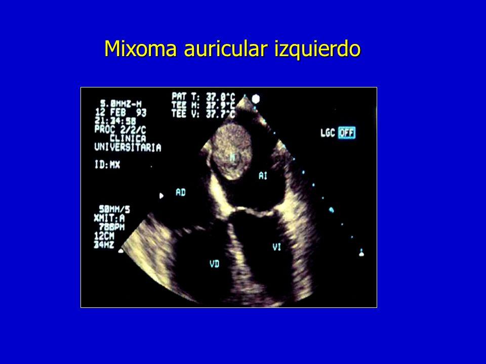 Tumores cardíacos Mixoma