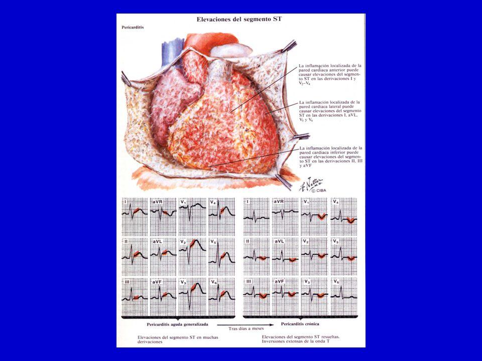 Derrame pericardico n Ecocardiograma n RxTorax(Cardiomegalia >200ml) n TAC/RNM n ECG.