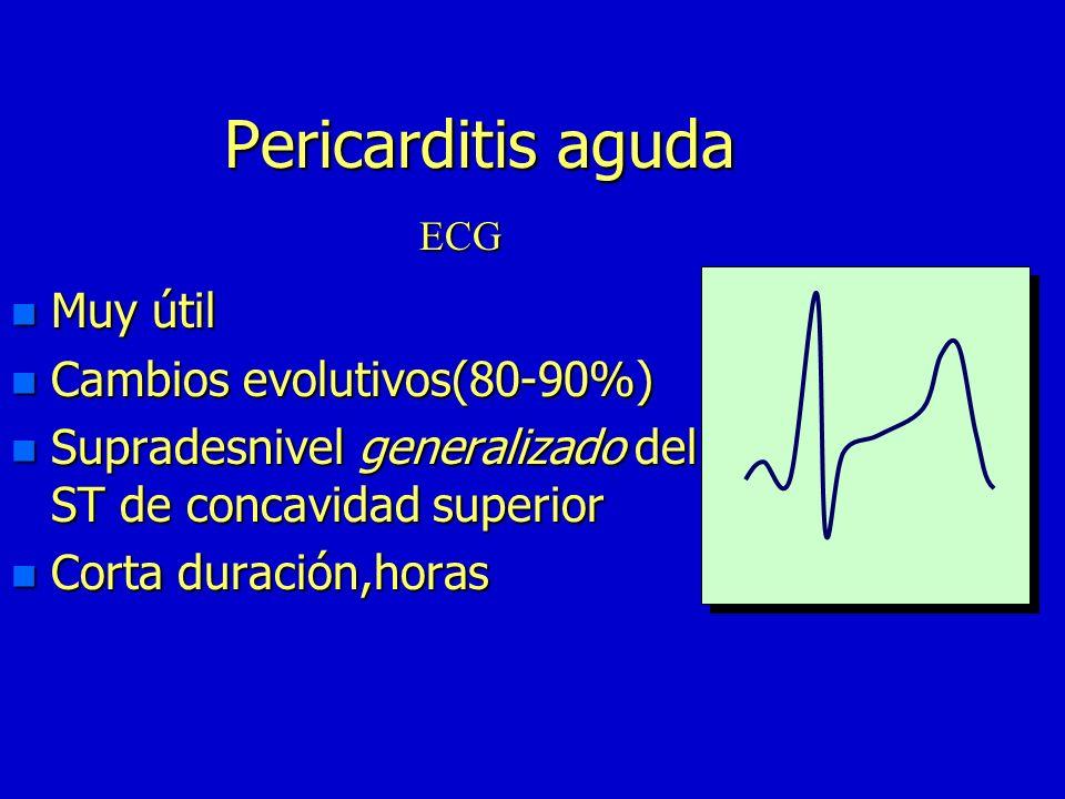 Pericarditis aguda n Muy útil n Cambios evolutivos(80-90%) n Supradesnivel generalizado del ST de concavidad superior n Corta duración,horas ECG