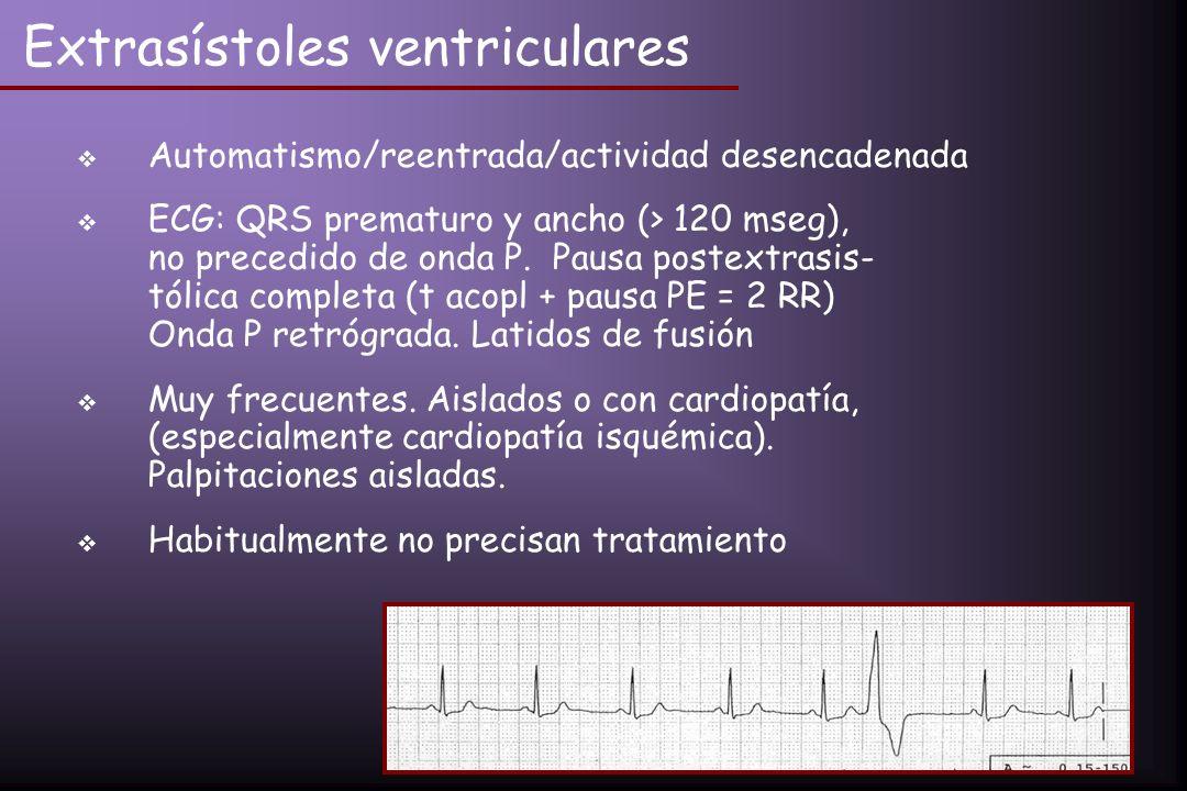 Extrasístoles ventriculares Automatismo/reentrada/actividad desencadenada ECG: QRS prematuro y ancho (> 120 mseg), no precedido de onda P. Pausa poste