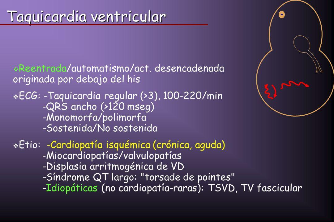 Taquicardia ventricular Reentrada/automatismo/act. desencadenada originada por debajo del his ECG: -Taquicardia regular (>3), 100-220/min -QRS ancho (