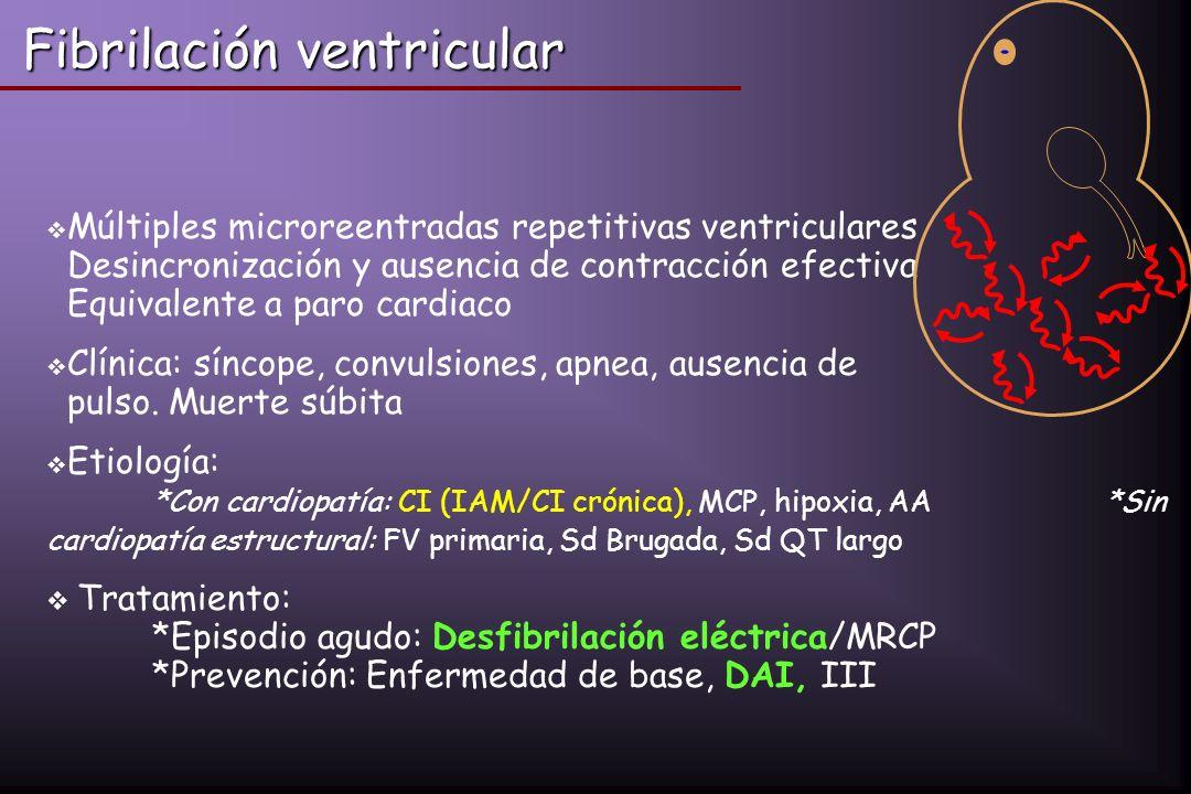 Fibrilación ventricular Múltiples microreentradas repetitivas ventriculares Desincronización y ausencia de contracción efectiva Equivalente a paro car