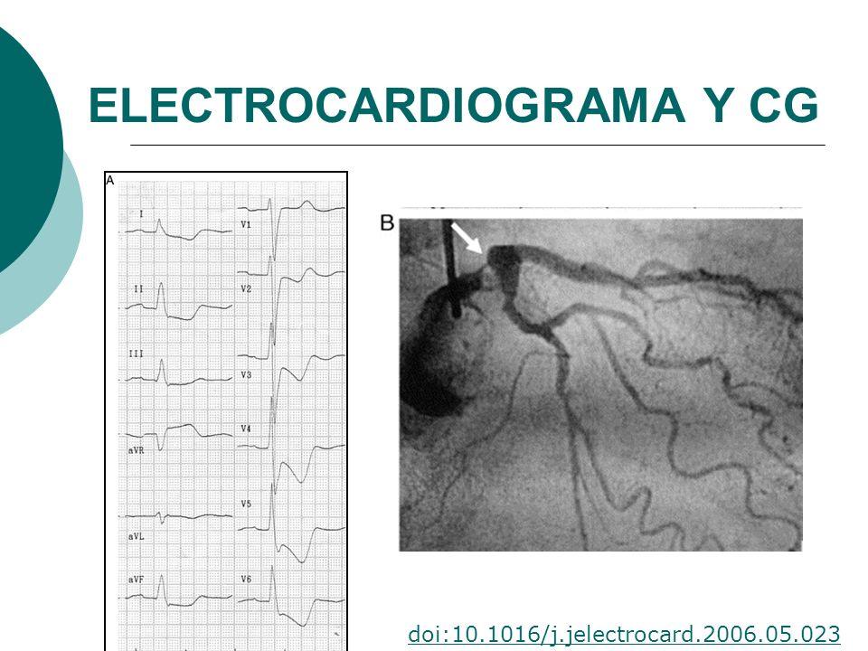 ELECTROCARDIOGRAMA Y CG doi:10.1016/j.jelectrocard.2006.05.023