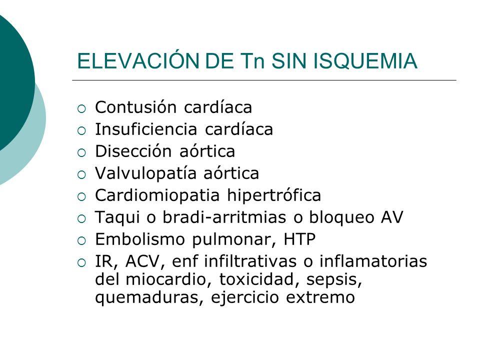 ELEVACIÓN DE Tn SIN ISQUEMIA Contusión cardíaca Insuficiencia cardíaca Disección aórtica Valvulopatía aórtica Cardiomiopatia hipertrófica Taqui o bradi-arritmias o bloqueo AV Embolismo pulmonar, HTP IR, ACV, enf infiltrativas o inflamatorias del miocardio, toxicidad, sepsis, quemaduras, ejercicio extremo