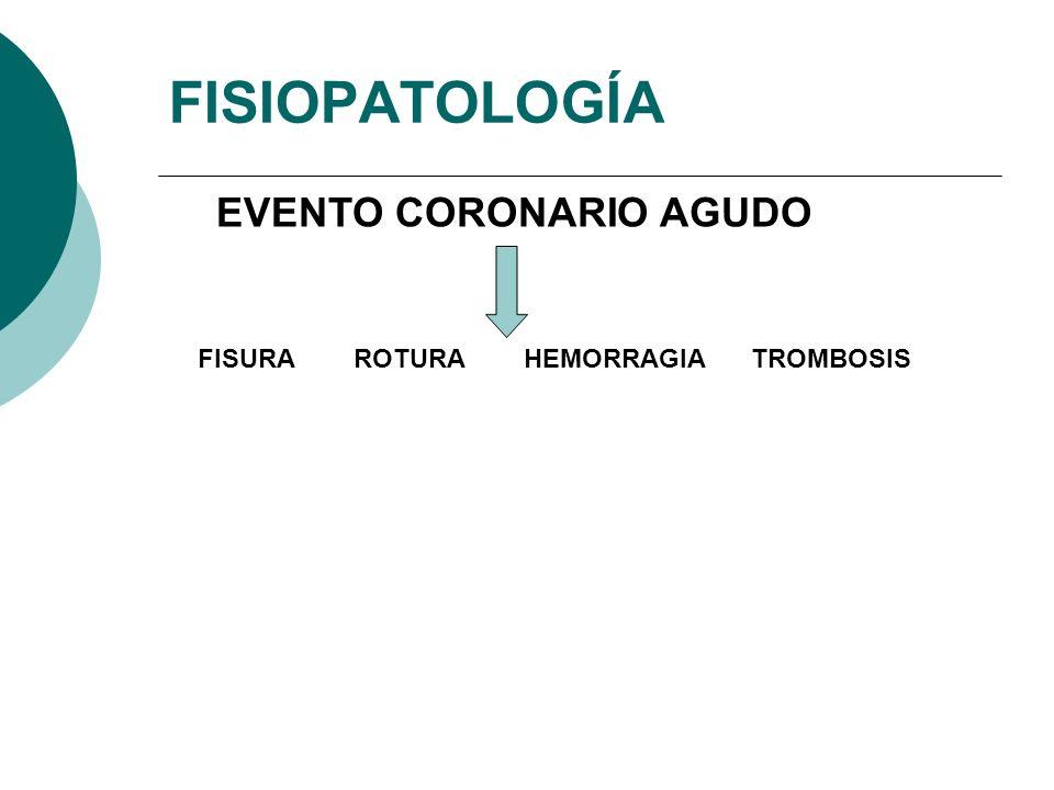 FISIOPATOLOGÍA EVENTO CORONARIO AGUDO FISURA ROTURA HEMORRAGIA TROMBOSIS