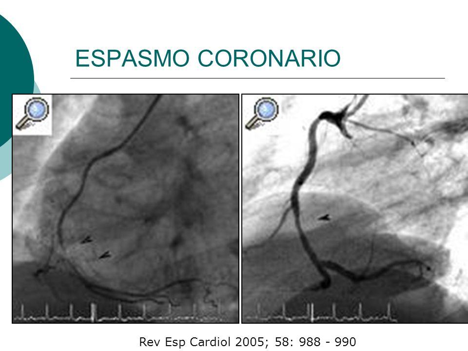 J Am Coll Cardiol 2006;48:1