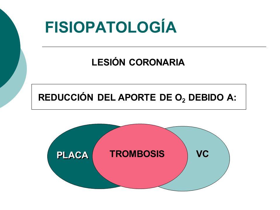 REDUCCIÓN DEL APORTE DE O 2 DEBIDO A: TROMBOSISVC PLACA FISIOPATOLOGÍA LESIÓN CORONARIA